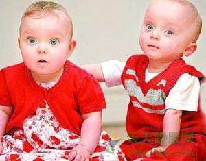 英国大小双胞胎存活