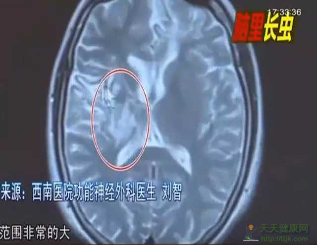 少女大脑皮层萎缩 医生从她脑子里捉出5厘米虫子