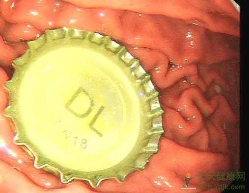 医生手术中用上了避孕套!只因为男子的一个过猛…