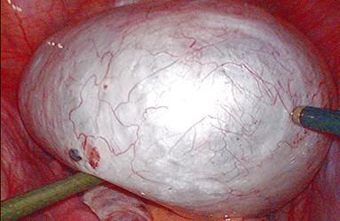 卵巢囊肿的症状有哪些呢?