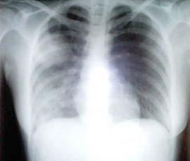 肺炎应该如何护理?