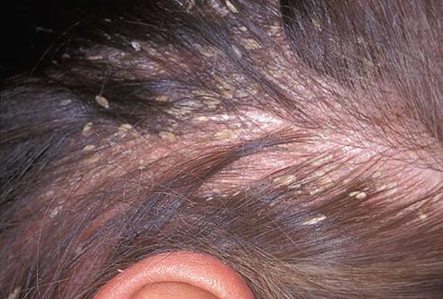 脂溢性皮炎-治疗方法