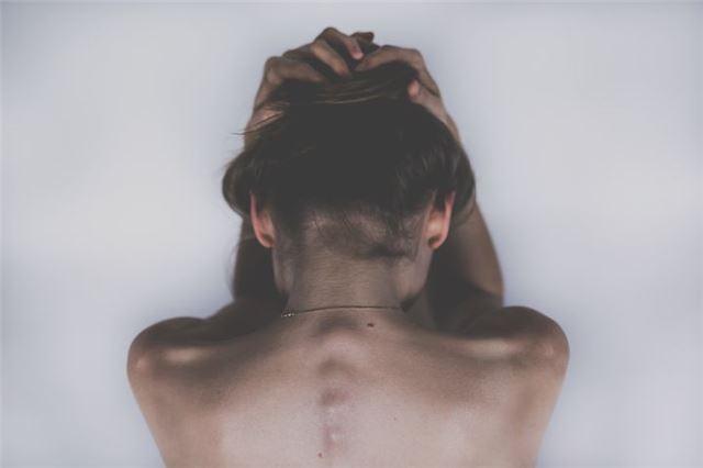 强直性脊柱炎的治疗方法