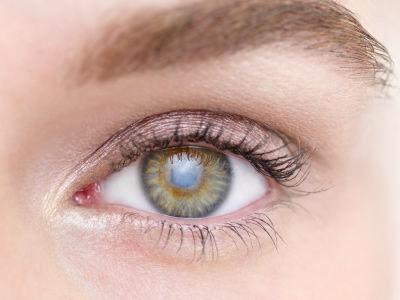 青光眼是因为什么原因才产生的