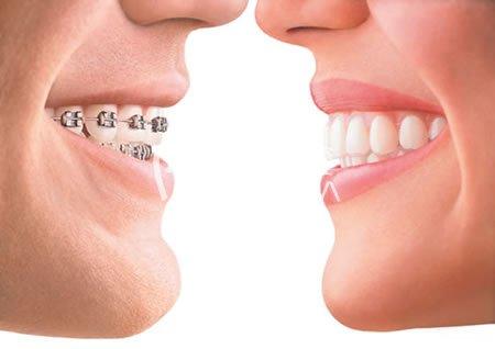 牙齿矫正需要多长时间呢