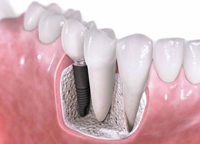 种植牙已经成为缺牙修复的上佳选择