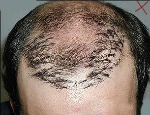 毛发种植术前注意事项有哪些